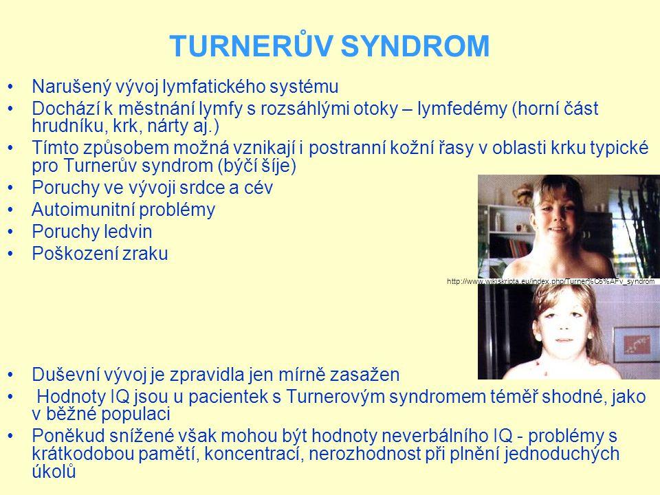 TURNERŮV SYNDROM Narušený vývoj lymfatického systému