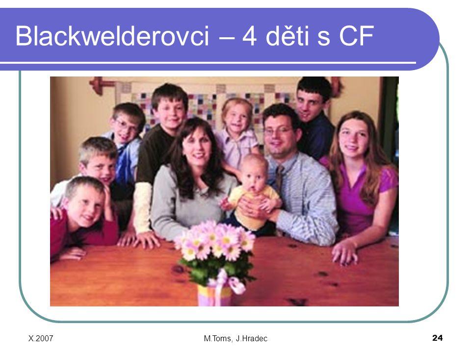 Blackwelderovci – 4 děti s CF