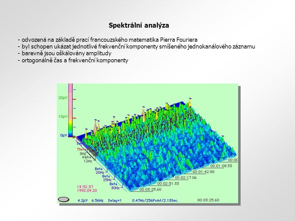 Spektrální analýza odvozená na základě prací francouzského matematika Pierra Fouriera.