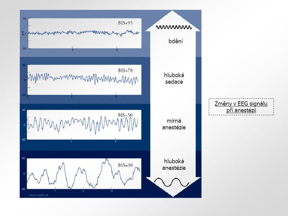 Změny v EEG signálu při anestézii