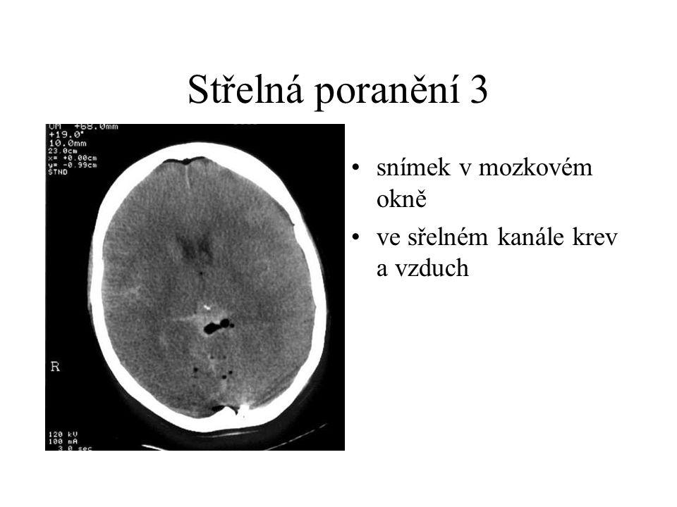 Střelná poranění 3 snímek v mozkovém okně