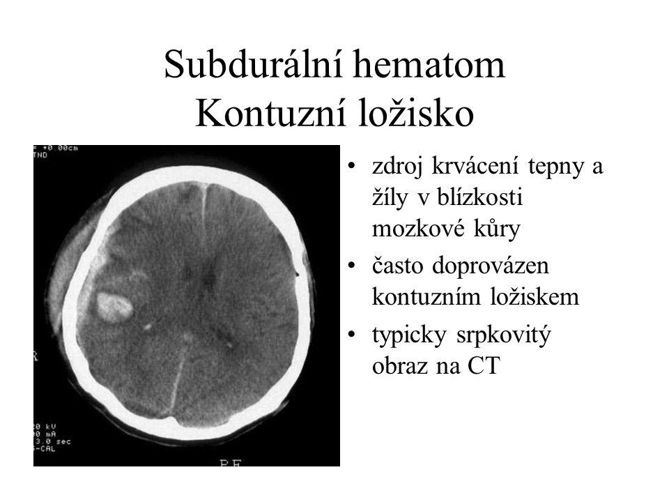 Subdurální hematom Kontuzní ložisko
