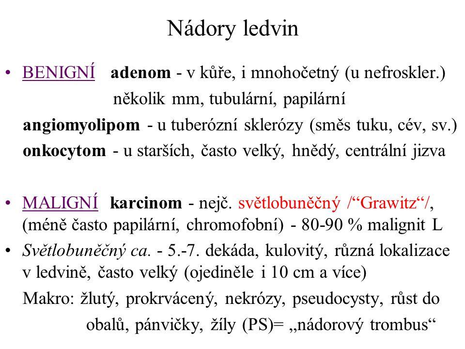 Nádory ledvin BENIGNÍ adenom - v kůře, i mnohočetný (u nefroskler.)