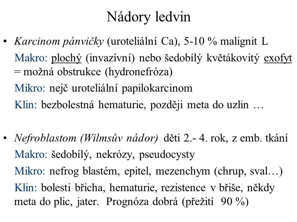 Nádory ledvin Karcinom pánvičky (uroteliální Ca), 5-10 % malignit L