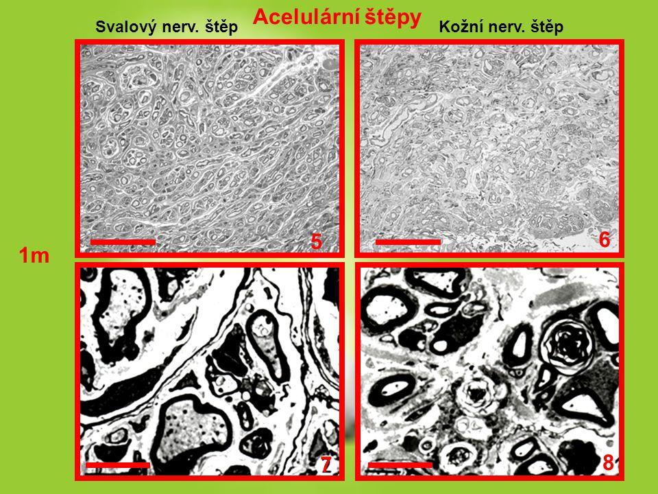 Acelulární štěpy Svalový nerv. štěp Kožní nerv. štěp 5 6 1m 7 8