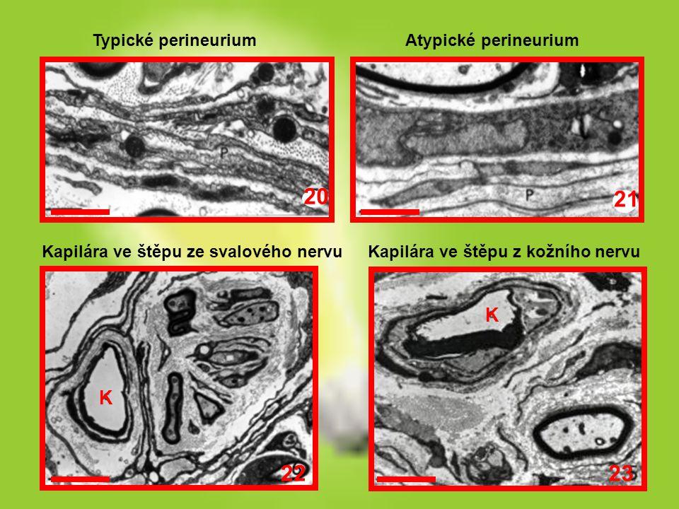 20 21 23 22 K K Typické perineurium Atypické perineurium