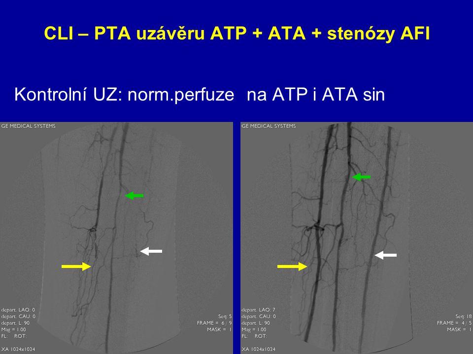 CLI – PTA uzávěru ATP + ATA + stenózy AFI