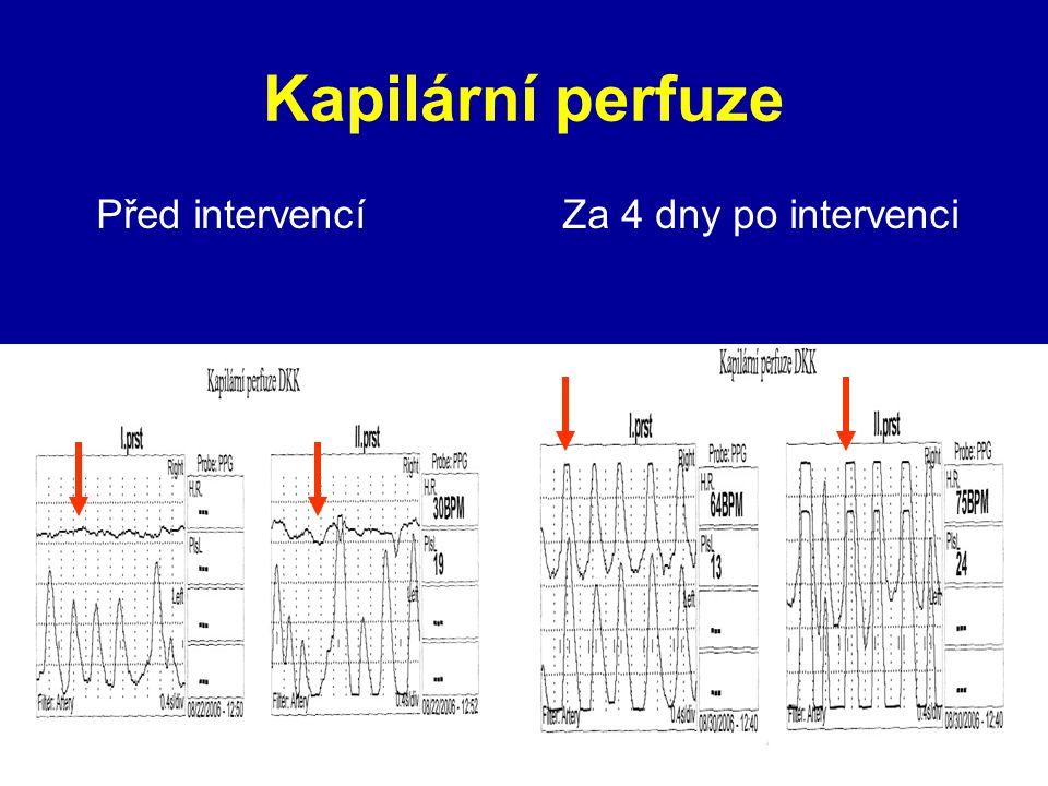 Kapilární perfuze Před intervencí Za 4 dny po intervenci