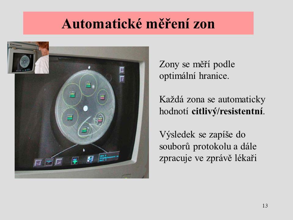 Automatické měření zon