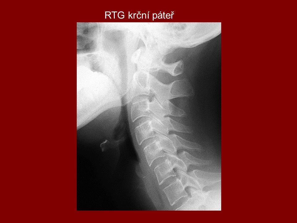 RTG krční páteř