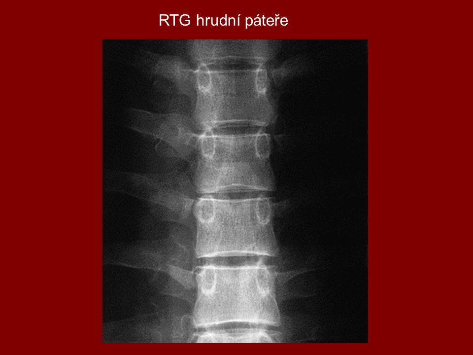 RTG hrudní páteře