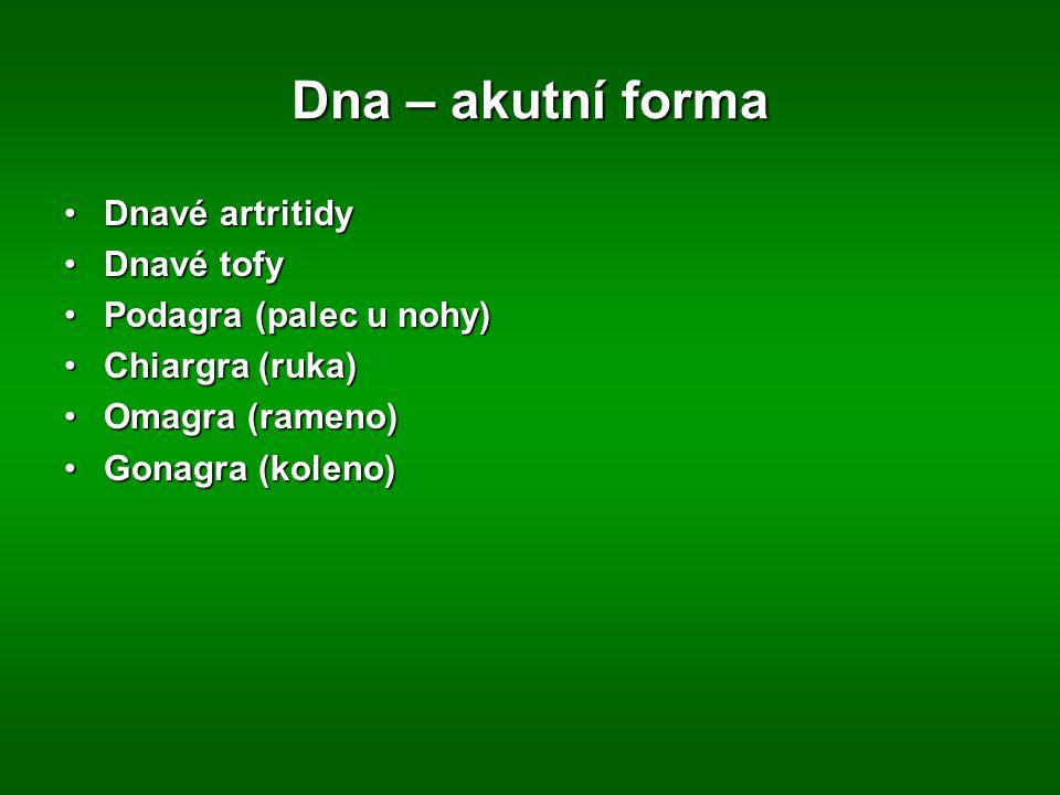 Dna – akutní forma Dnavé artritidy Dnavé tofy Podagra (palec u nohy)