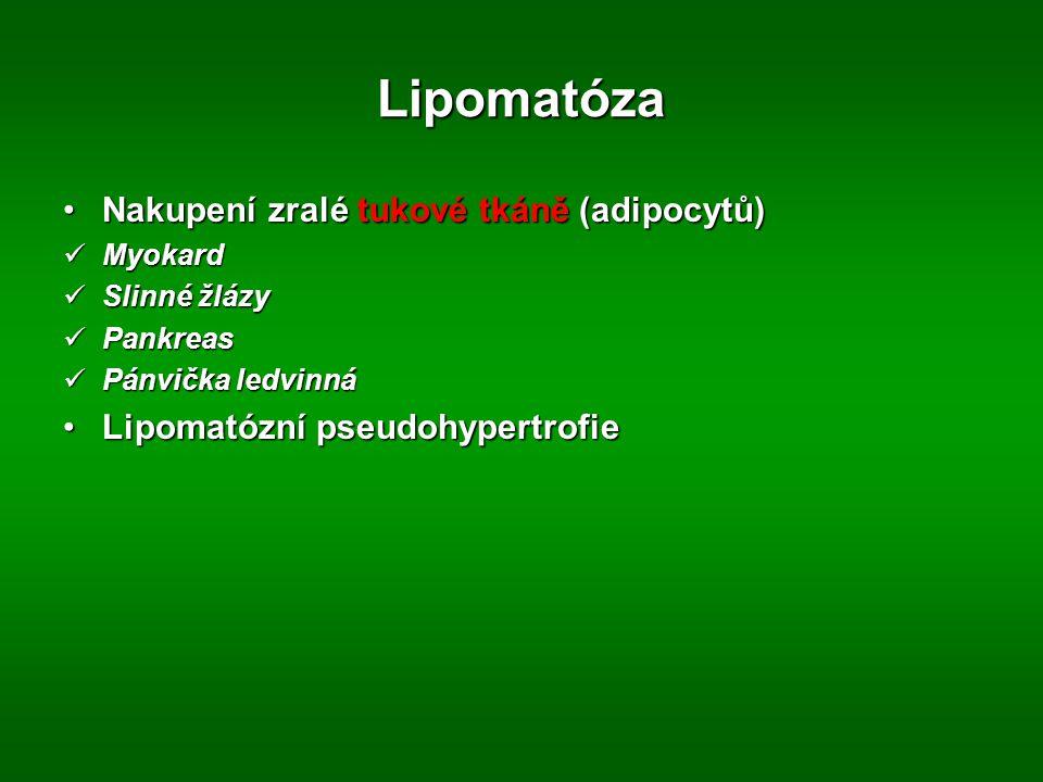 Lipomatóza Nakupení zralé tukové tkáně (adipocytů)