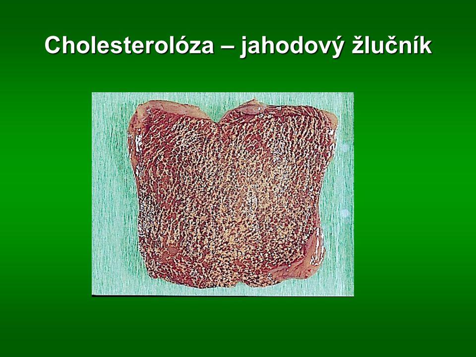 Cholesterolóza – jahodový žlučník