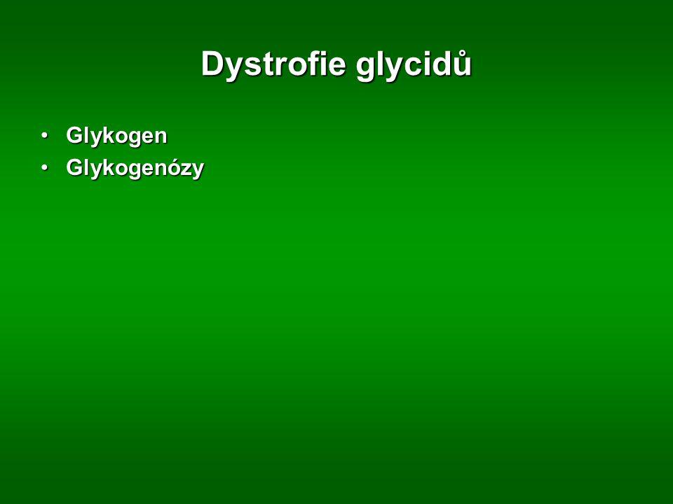 Dystrofie glycidů Glykogen Glykogenózy