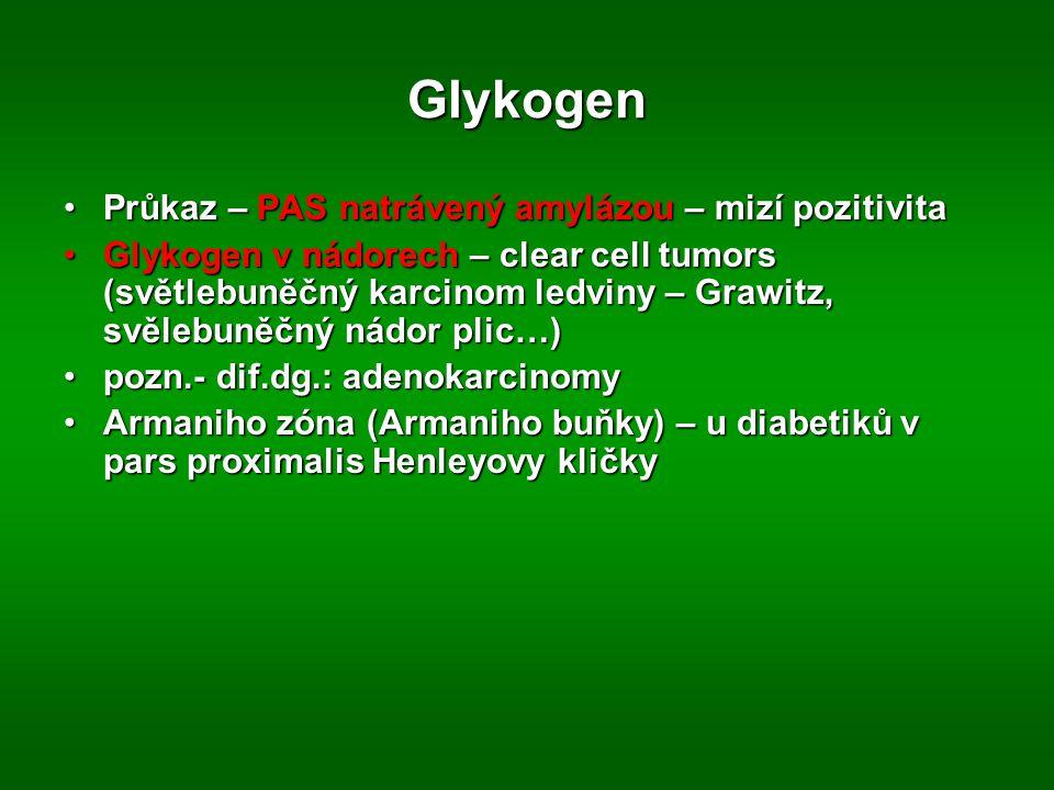 Glykogen Průkaz – PAS natrávený amylázou – mizí pozitivita