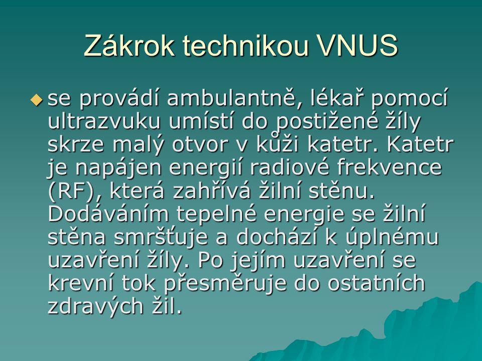 Zákrok technikou VNUS