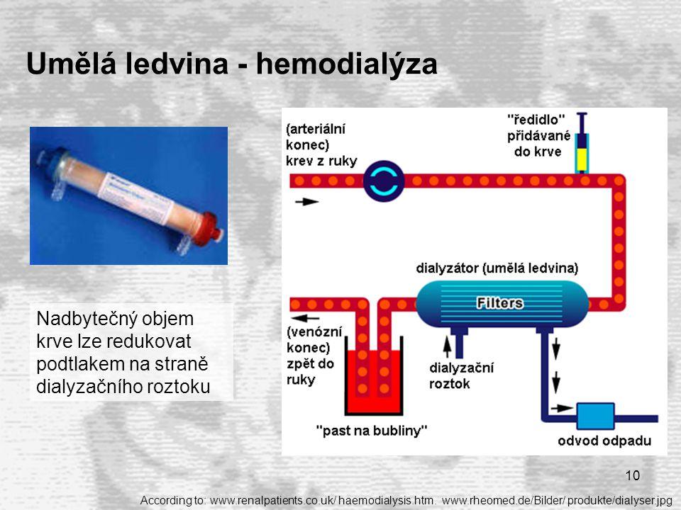 Umělá ledvina - hemodialýza