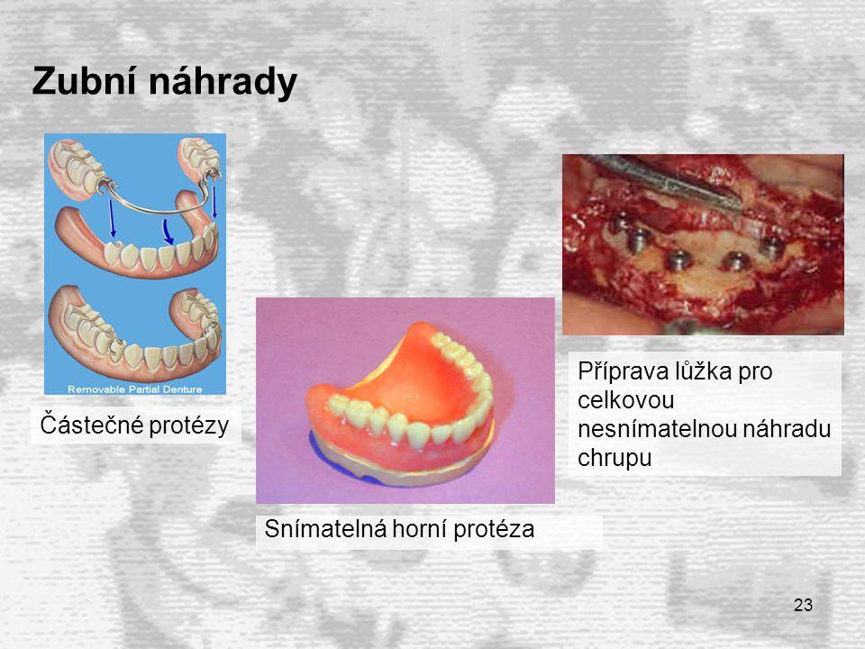 Zubní náhrady Příprava lůžka pro celkovou nesnímatelnou náhradu chrupu
