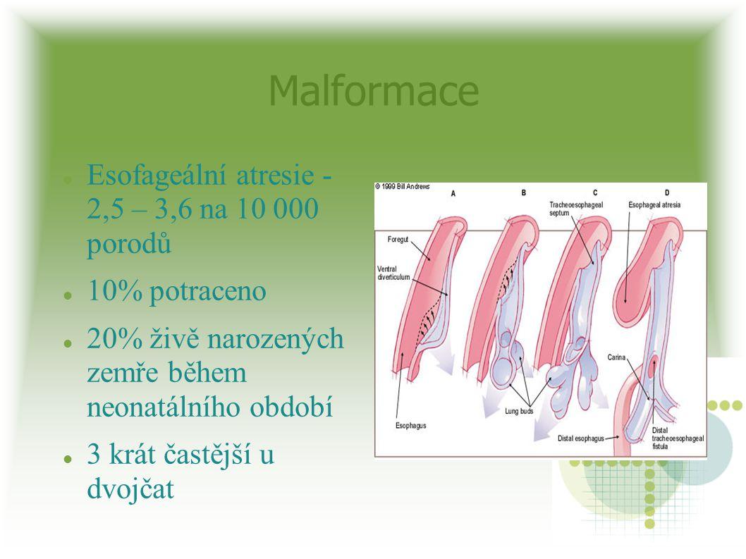 Malformace Esofageální atresie - 2,5 – 3,6 na 10 000 porodů