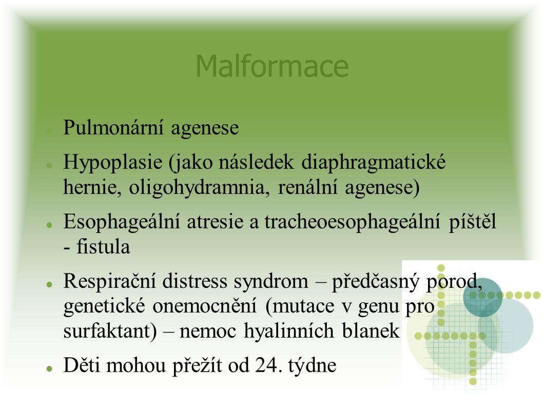 Malformace Pulmonární agenese