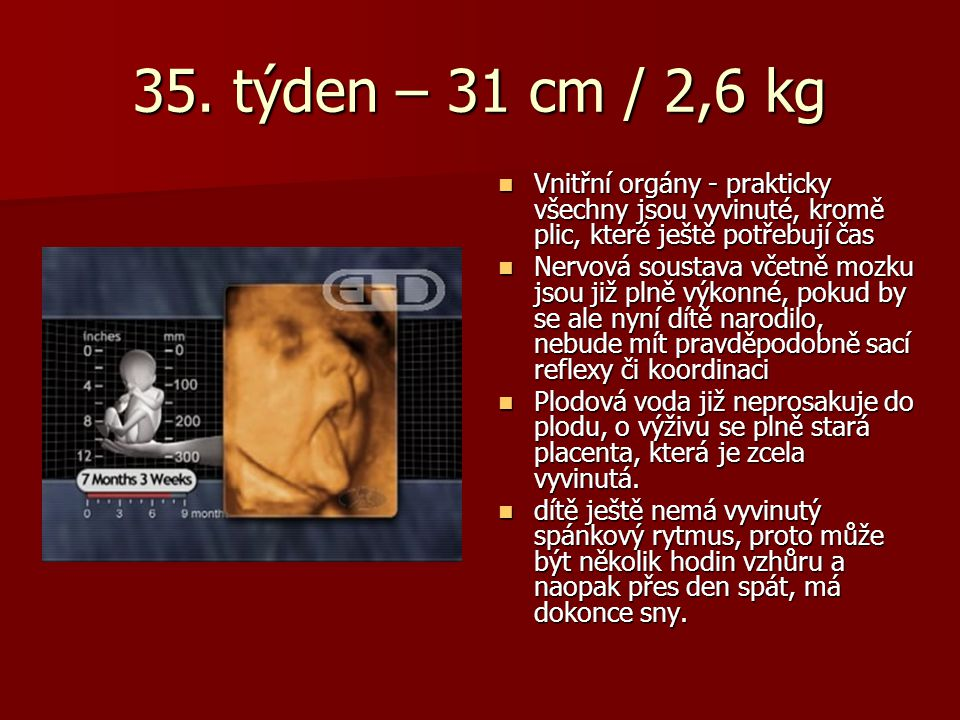 35. týden – 31 cm / 2,6 kg Vnitřní orgány - prakticky všechny jsou vyvinuté, kromě plic, které ještě potřebují čas.