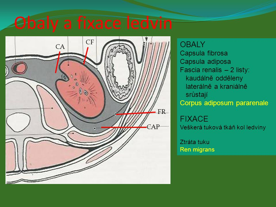 Obaly a fixace ledvin OBALY FIXACE CF CA Capsula fibrosa