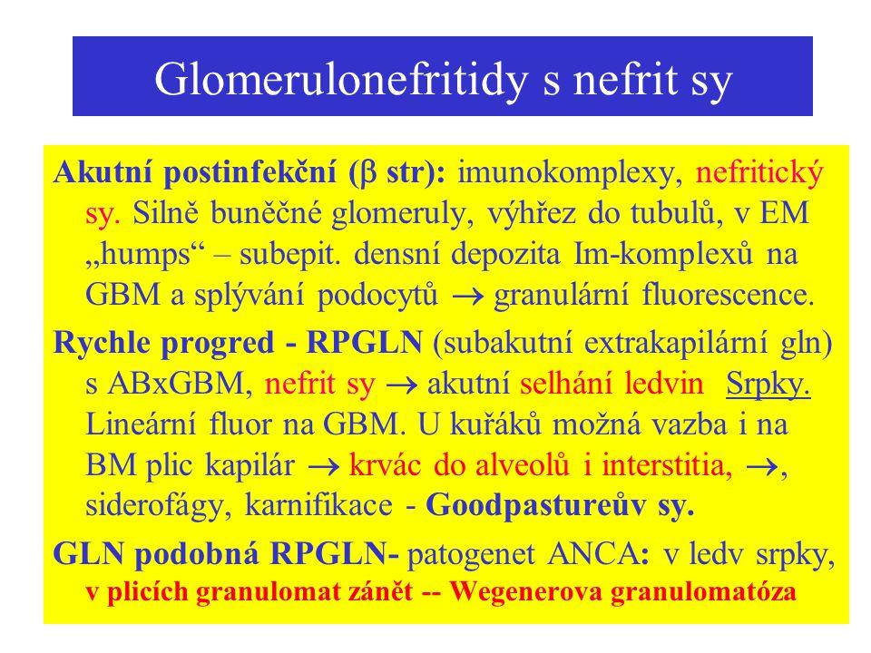 Glomerulonefritidy s nefrit sy
