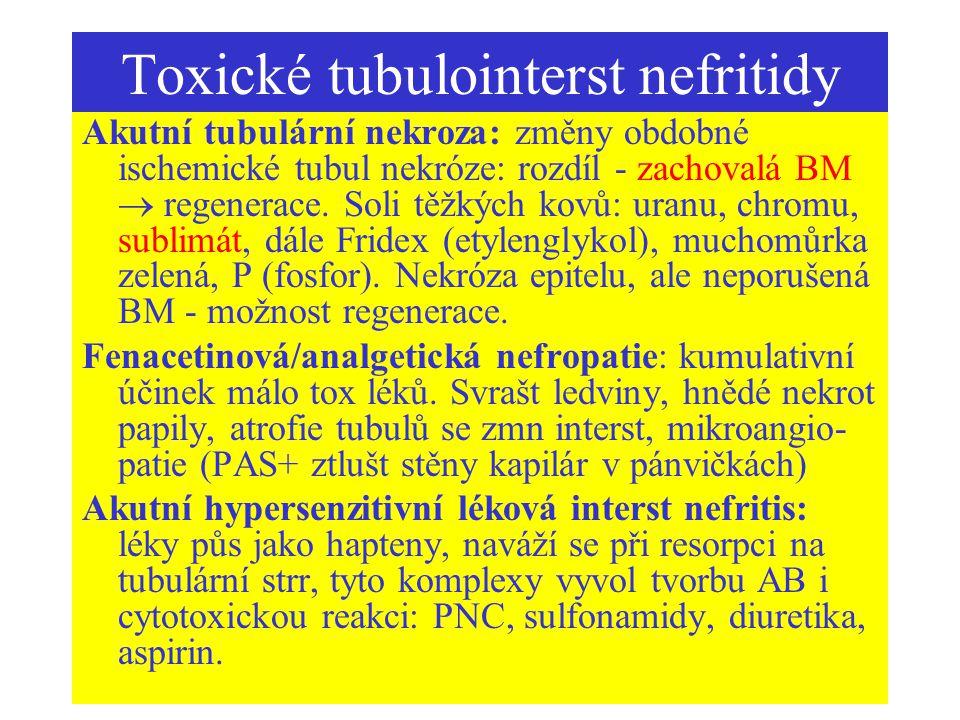 Toxické tubulointerst nefritidy