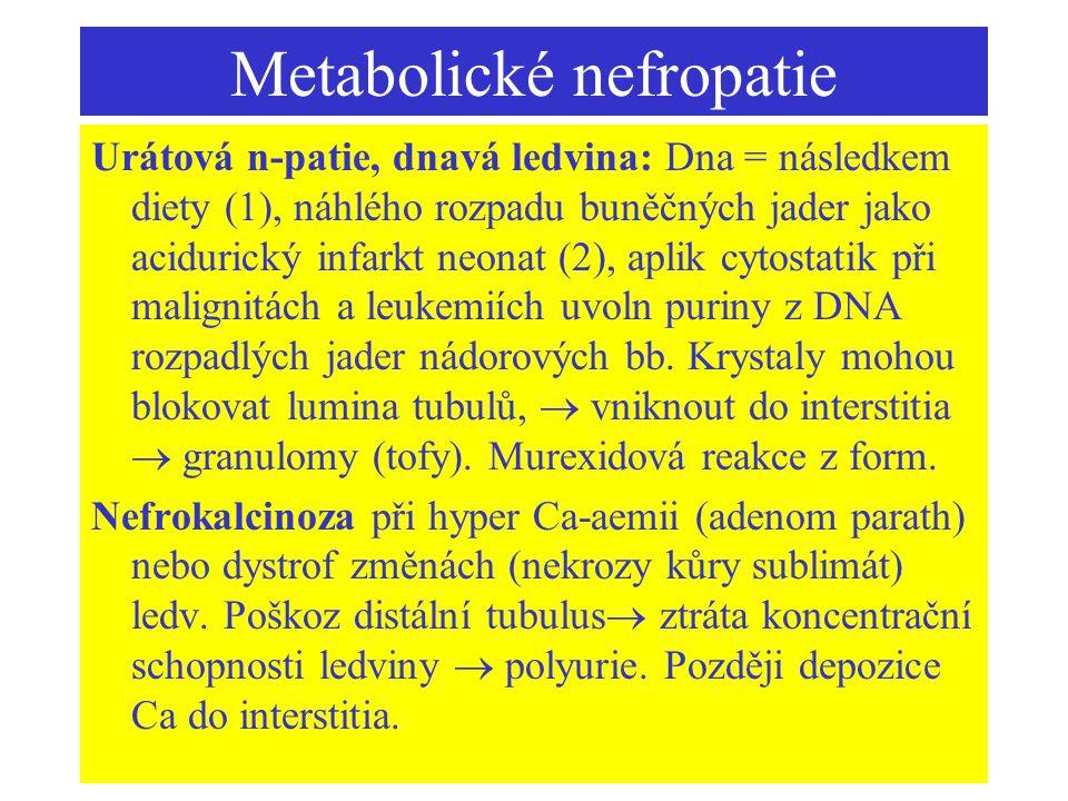 Metabolické nefropatie