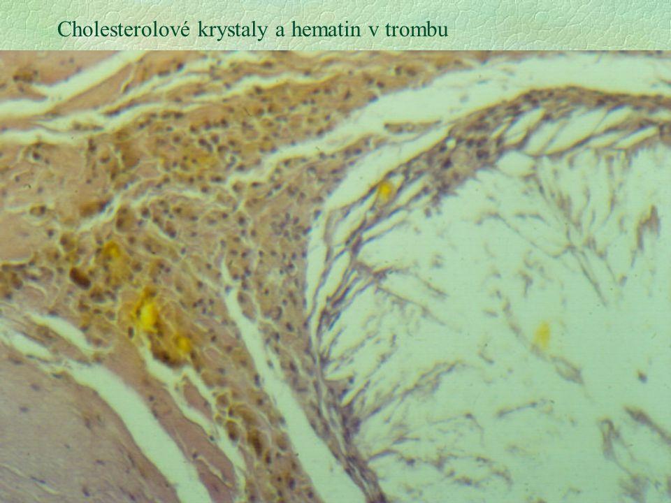Cholesterolové krystaly a hematin v trombu