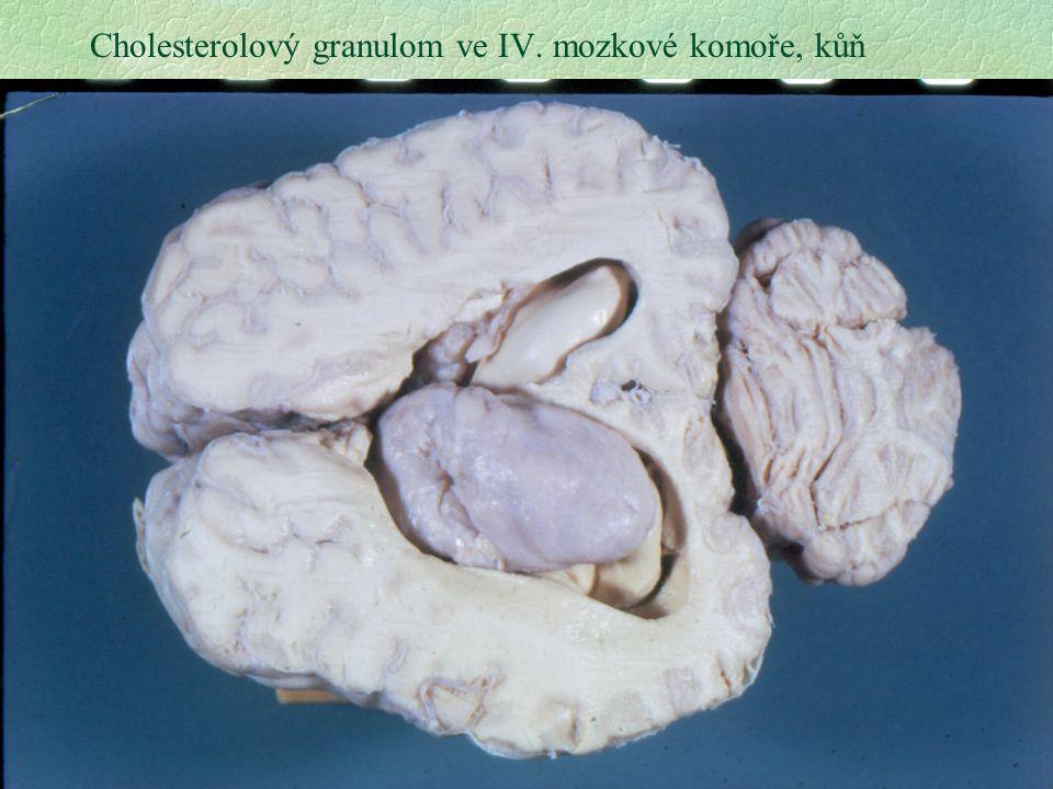 Cholesterolový granulom ve IV. mozkové komoře, kůň