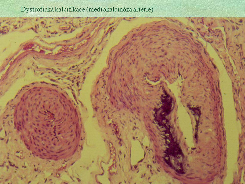 Dystrofická kalcifikace (mediokalcinóza arterie)