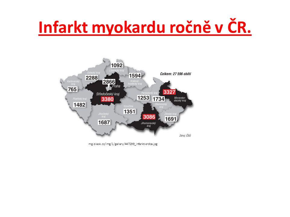 Infarkt myokardu ročně v ČR.