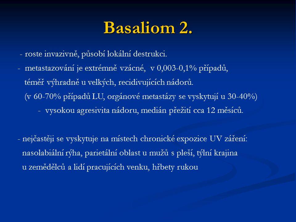 Basaliom 2. - roste invazivně, působí lokální destrukci.