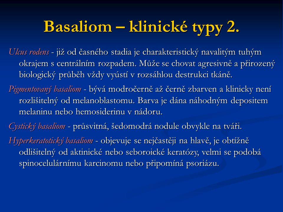 Basaliom – klinické typy 2.