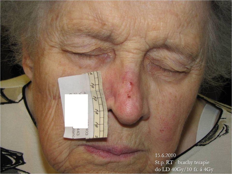 15.6.2010 St.p. RT - brachy terapie do LD 40Gy/10 fr. á 4Gy 15