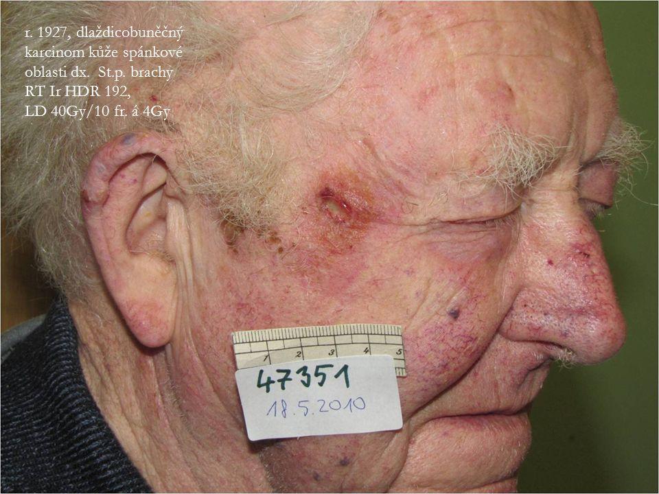 r. 1927, dlaždicobuněčný karcinom kůže spánkové oblasti dx. St. p
