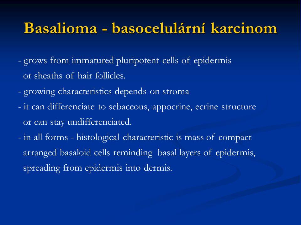 Basalioma - basocelulární karcinom