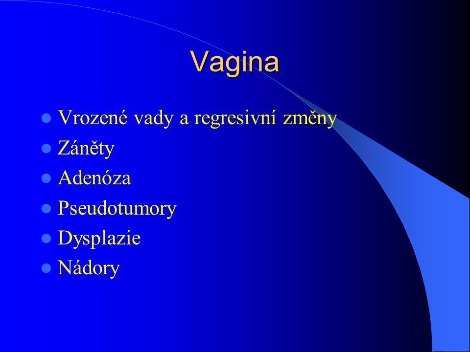 Vagina Vrozené vady a regresivní změny Záněty Adenóza Pseudotumory