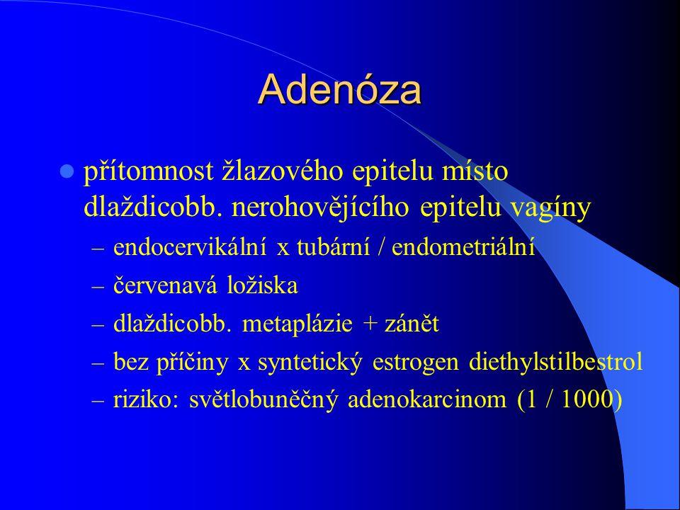 Adenóza přítomnost žlazového epitelu místo dlaždicobb. nerohovějícího epitelu vagíny. endocervikální x tubární / endometriální.