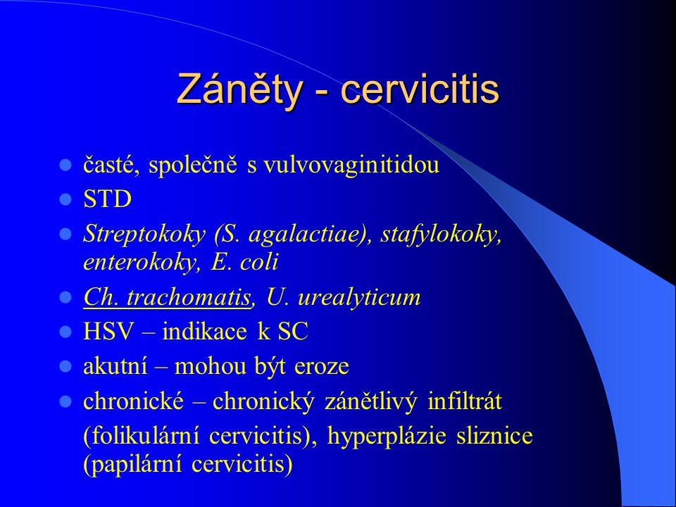 Záněty - cervicitis časté, společně s vulvovaginitidou STD
