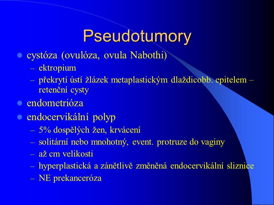 Pseudotumory cystóza (ovulóza, ovula Nabothi) endometrióza