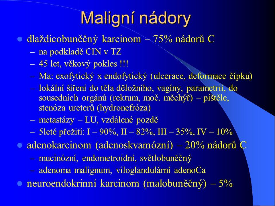 Maligní nádory dlaždicobuněčný karcinom – 75% nádorů C
