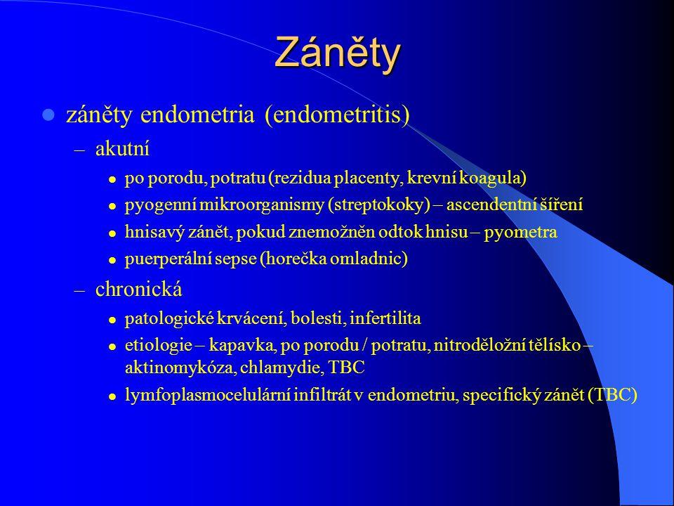Záněty záněty endometria (endometritis) akutní chronická