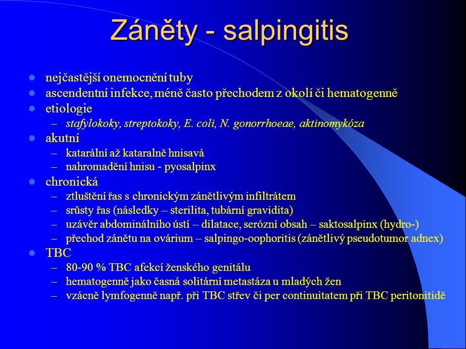 Záněty - salpingitis nejčastější onemocnění tuby