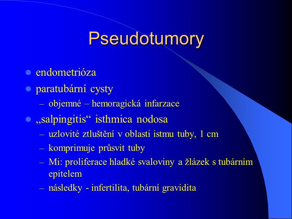 Pseudotumory endometrióza paratubární cysty