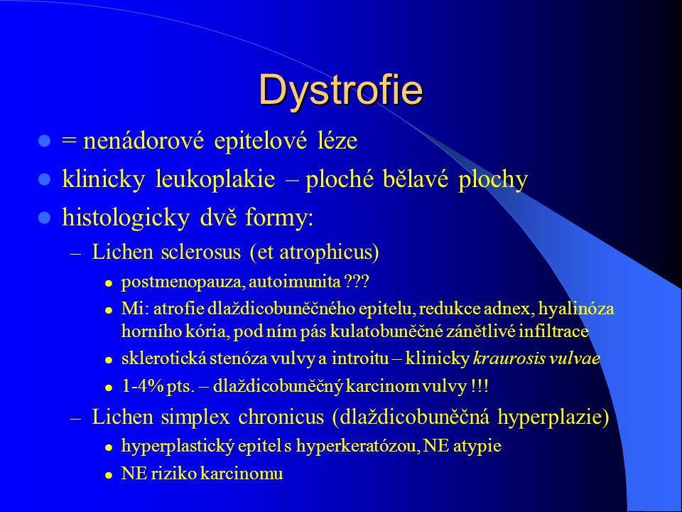 Dystrofie = nenádorové epitelové léze