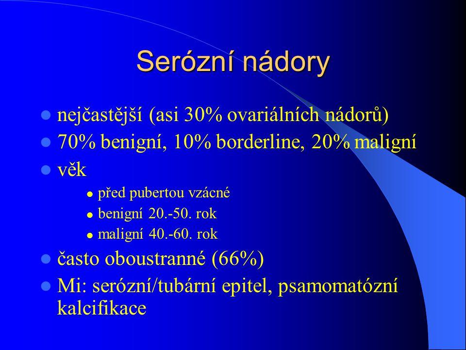 Serózní nádory nejčastější (asi 30% ovariálních nádorů)
