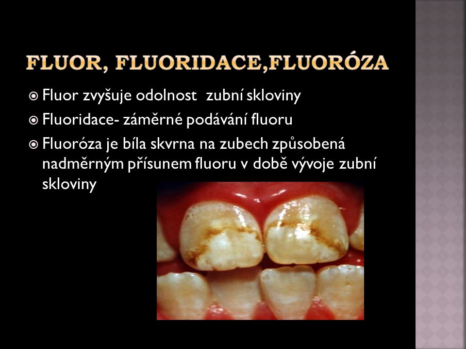 Fluor, fluoridace,Fluoróza